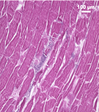 skeletal muscle tissue of meat