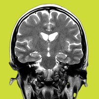 Scientists find a new cause for an insidious brain virus