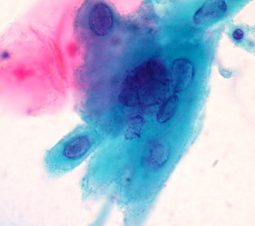 Herpes-infected squamous cells, ThinPrep