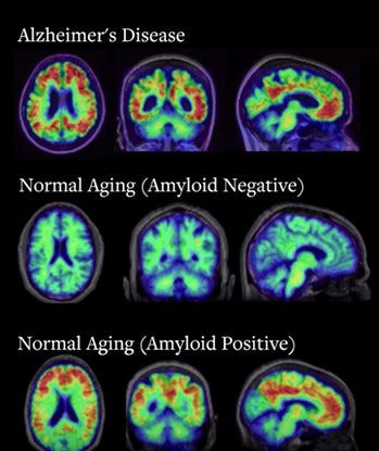 pet scan alzheimers