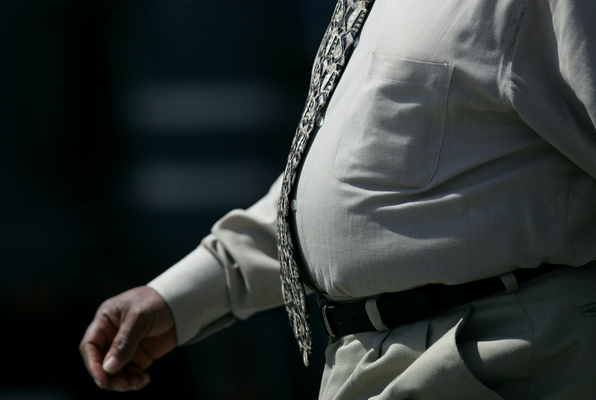 Obese people have more problems than simply body mass. Their fat can make it harder to lose weight.