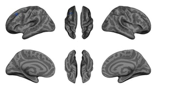 cortical thickness exercise brain