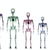Bones secrete a special hormone when you're stressed