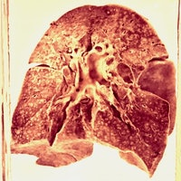 Gnarly lungs found in a museum basement rewrite the history of measles