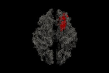 magnetic resonance imaging of a brain