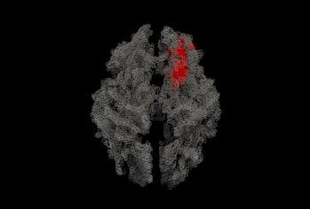 magnetic resonance imaging of a brain
