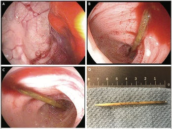 toothpick in colon