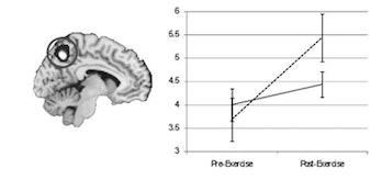 brain scans dehydration