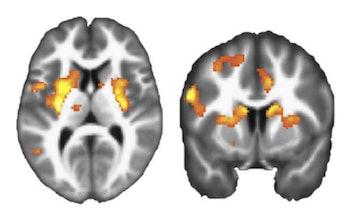 fMRI of dorsal striata