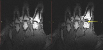Before and after images of knuckles being cracked