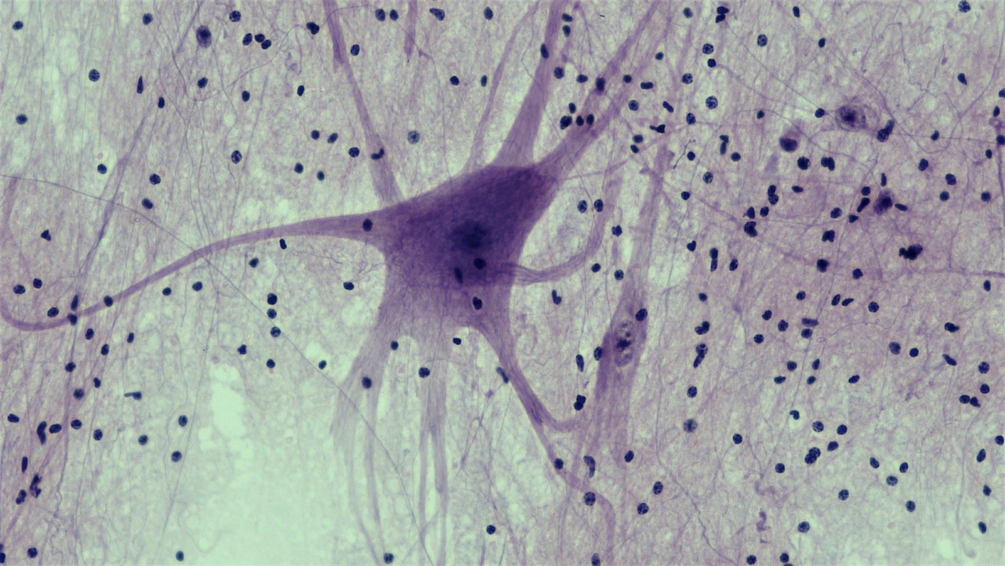 Nervous Tissue: Spinal Cord Motor Neuron