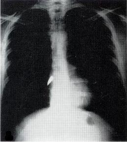 X-ray of a bullet in the heart.