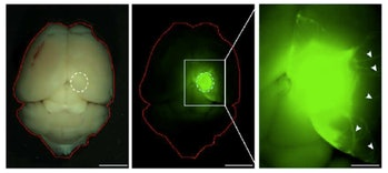mouse brain organoid human