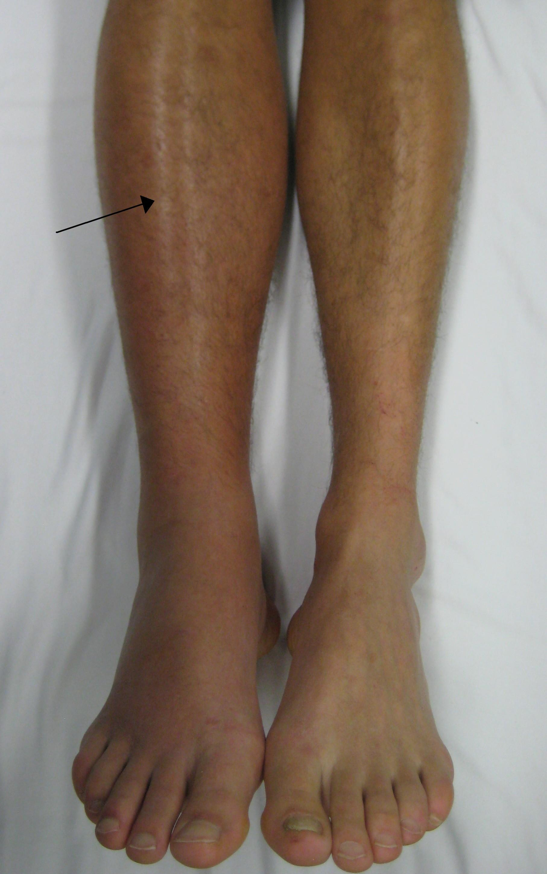A deep vein thrombosis as seen in the right leg is a risk factor for pulmonary embolism