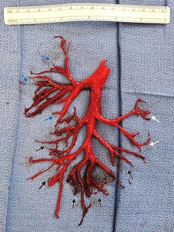 right bronchial tree.