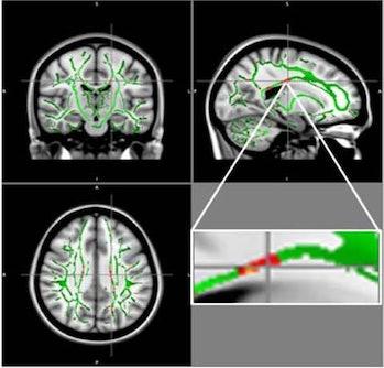 brain damage, teens, obesity