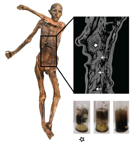 Ötzi's gastrointestinal (GI) tract preservation and content texture. The radiographic image shows the completely filled stomach (asterisk) and the intestinal loops of the lower GI tract (arrows).