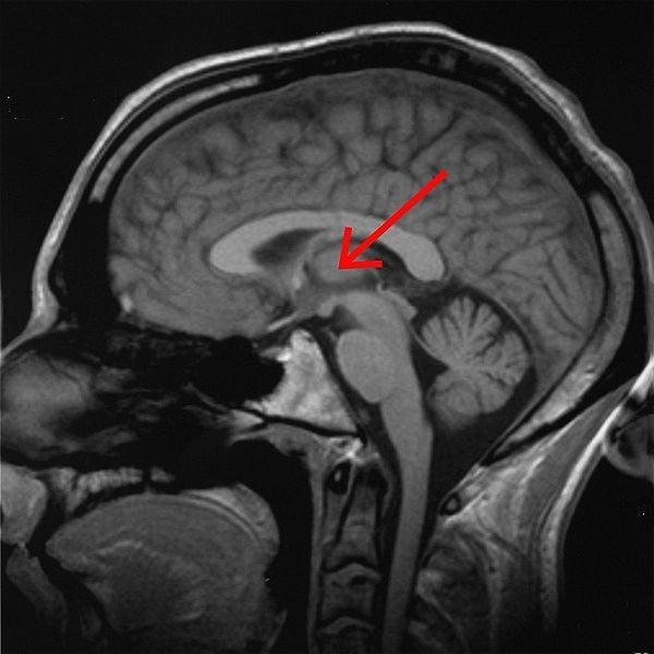 thalamus brain