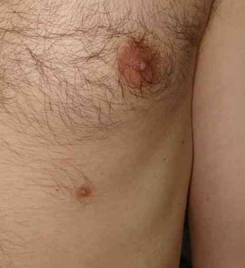 extra third nipple