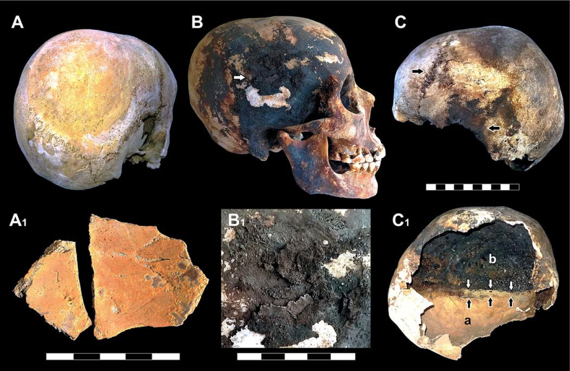 Dark stains and char marks tell researchers that Vesuvius' victims' brains likely vaporized in their skulls under the extreme heat.