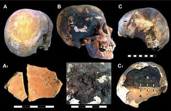 Dark stains and char marks tell researchers that Vesuvius' victims' brains likely vaporized in their...