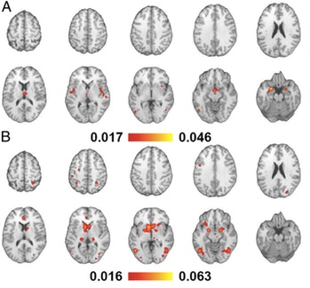 Brain activation looked different depending on whether a person viewed videos (A) or photos (B), but their sex didn't change this pattern.