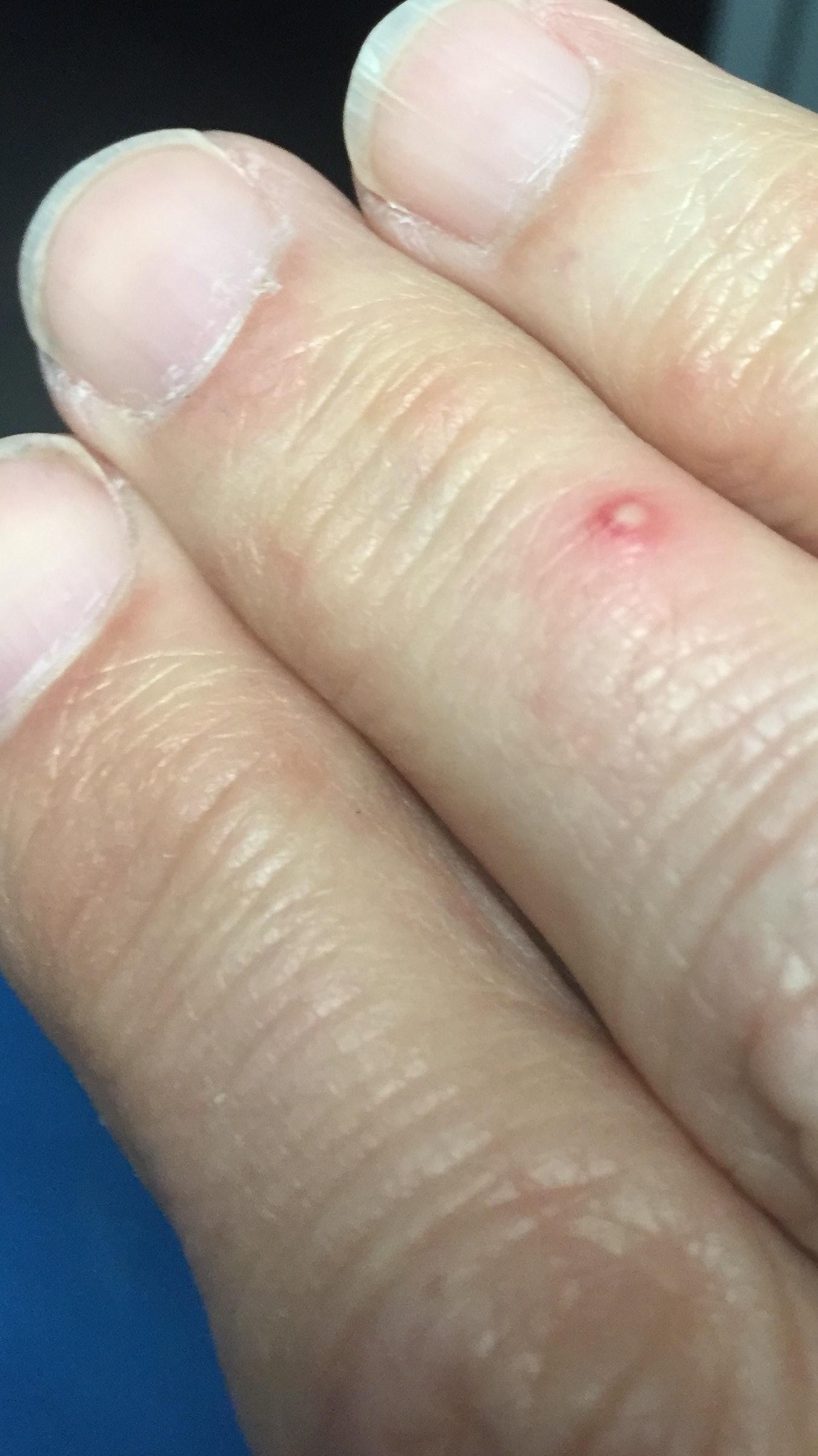 Pustule from Fire Ant bite