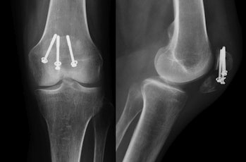 patellar fracture surgery screws x-ray