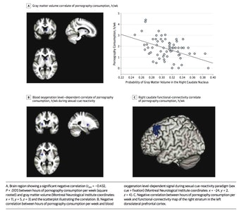 brain images porn