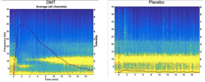 DMT brain waves