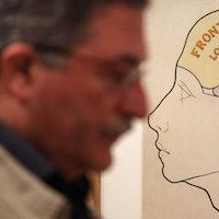 Transsexual Brains Show Testosterone Ruins Women's Multitasking Abilities
