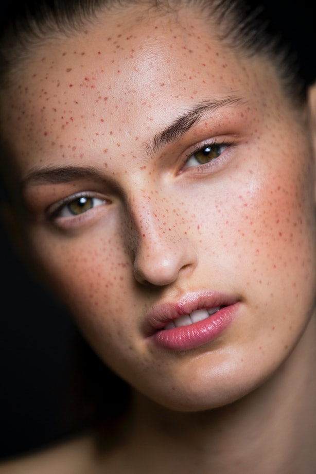 How To Get A Natural Tan Without Freckles