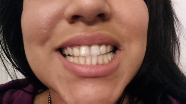 Does Activated Charcoal Whiten Teeth I Brushed With It For A Week
