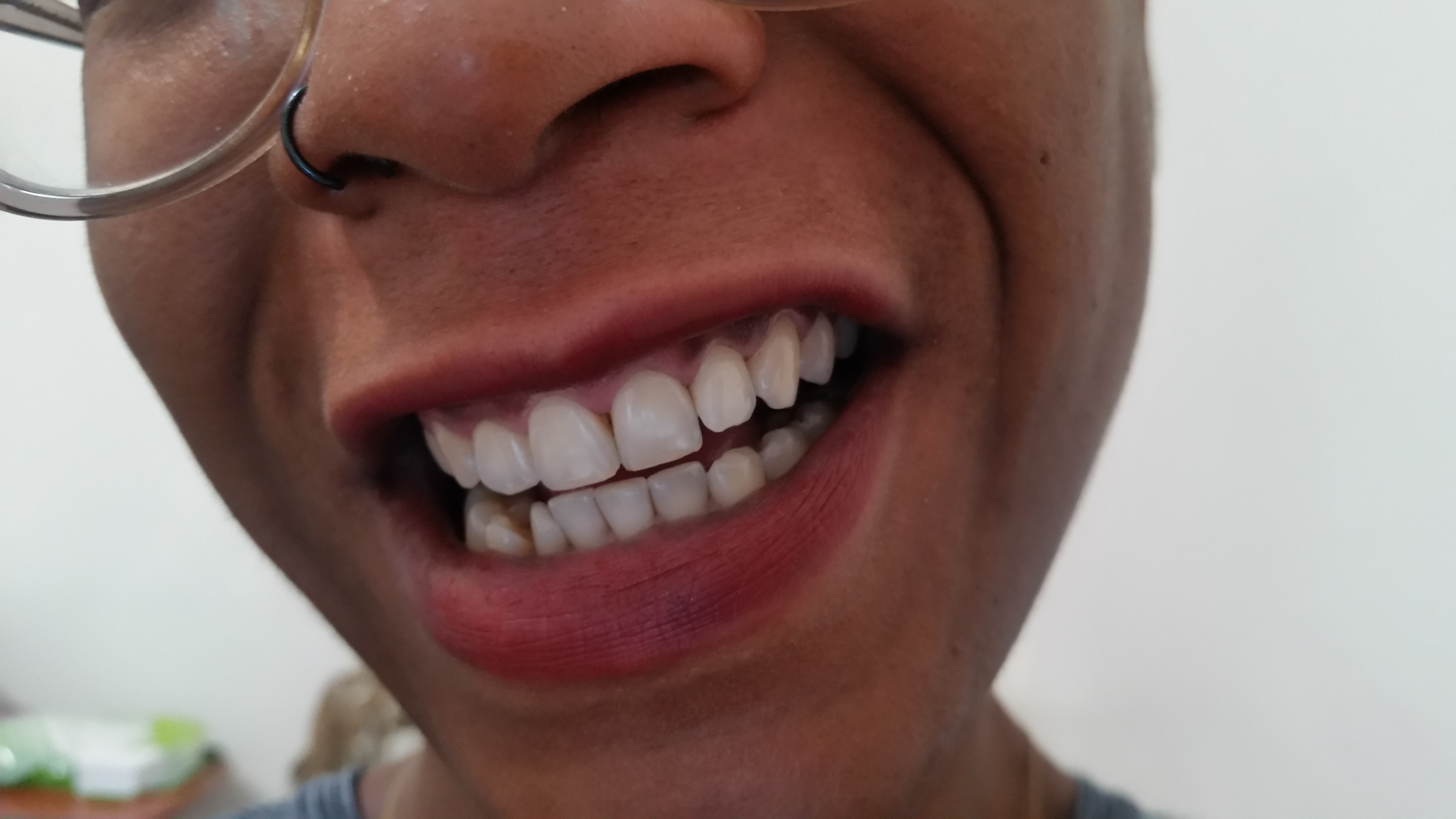 I Tested 6 Home Remedies To Whiten Teeth This One Worked The
