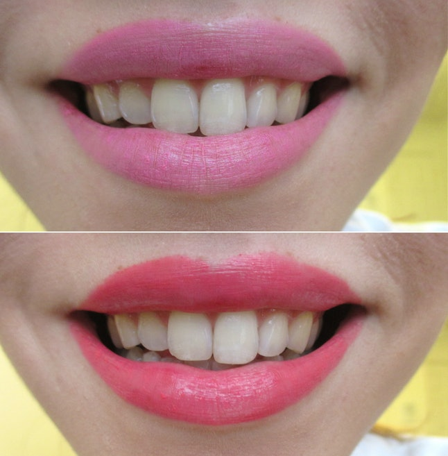 What Color Lipstick Makes Teeth Look Whiter A Handy Guide -7283