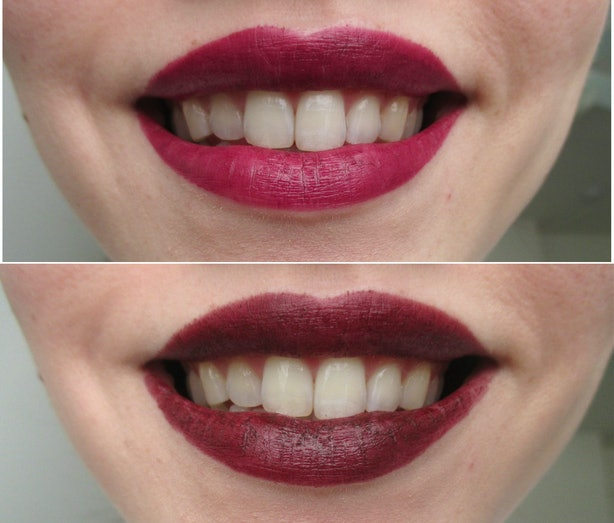 What Color Lipstick Makes Teeth Look Whiter A Handy Guide