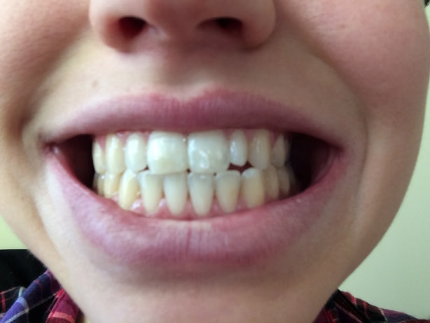 Does Oil Pulling Work To Whiten Your Teeth? I Tried It For ...