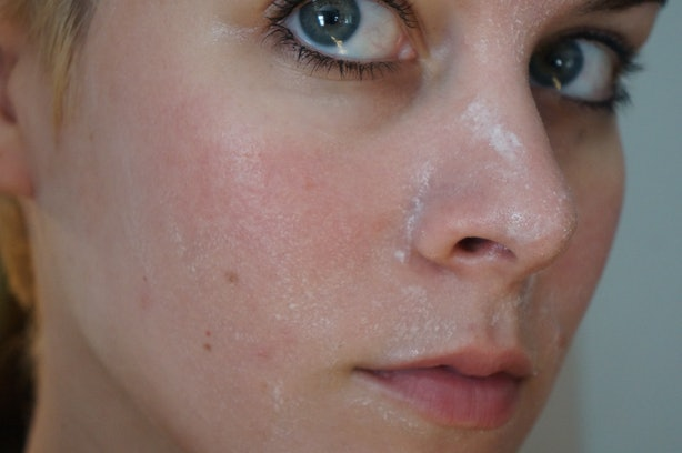 how to stop my face skin redness
