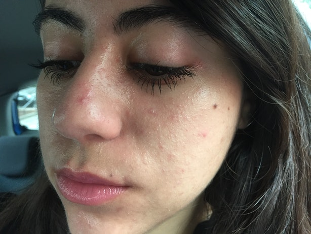 I tried 6 facial sprays to find out which ones are most refreshing in a few easy steps i had a facial spray made of all natural ingredients that i felt comfortable using in every stage of my beauty routine solutioingenieria Gallery