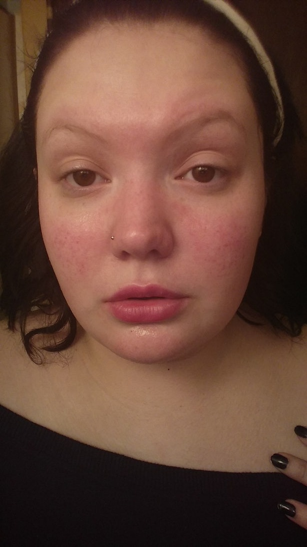 13 Women Showing Off Their Scars  Skin Conditions With No Apology  Photos