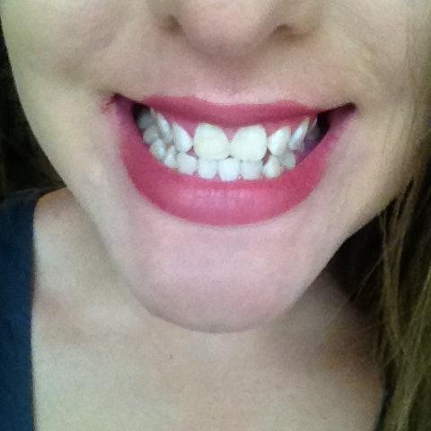 I Tried At-Home Teeth Whitening Methods Pinterest ...