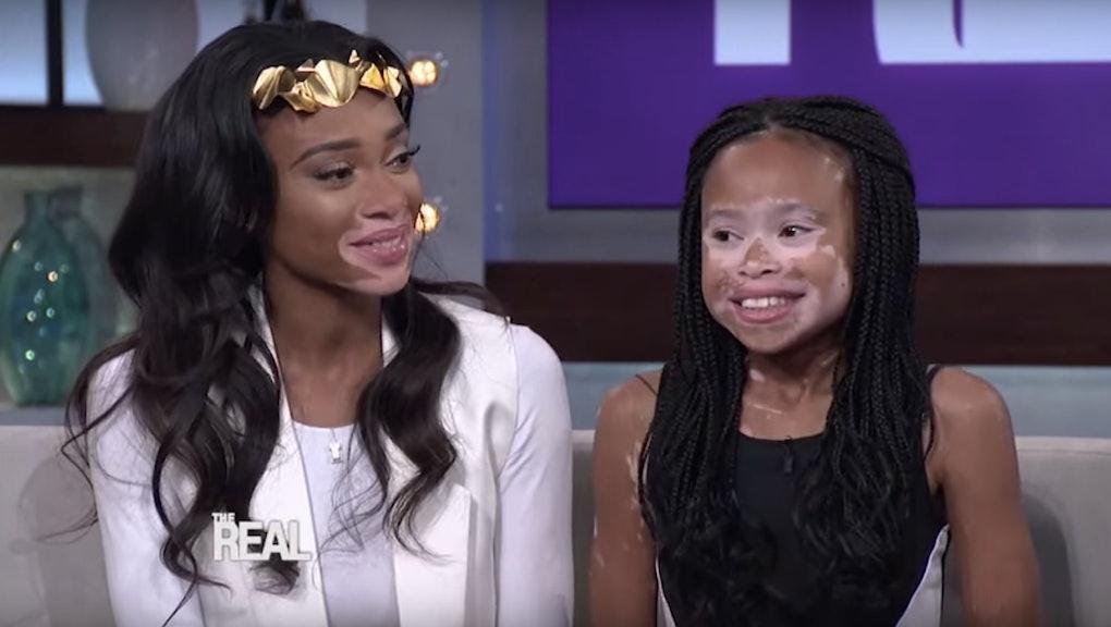मानव रहना | Chantelle brown young, Vitiligo model, Model