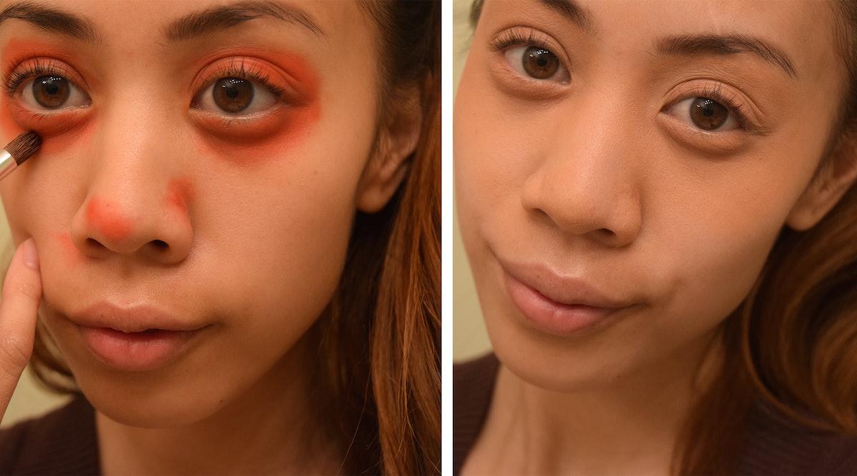 Причины мешков под глазами могут быть разными: от заболевания почек до банального недосыпа или бурной ночи.