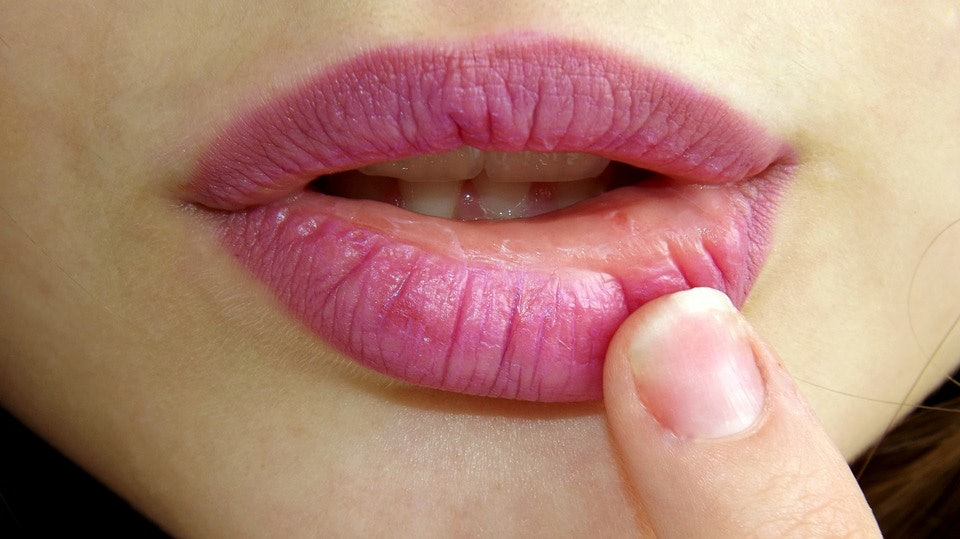 Cold sore compared to herpes dating