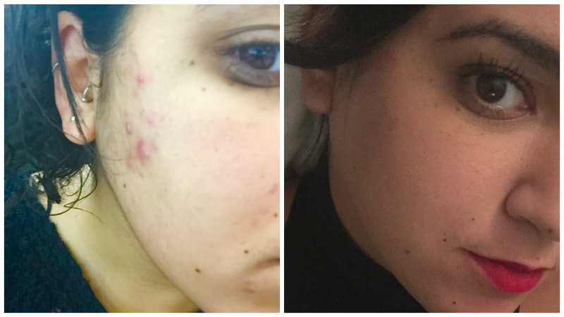 How I Cured My Cystic Acne With Easy At Home Treatments Photos