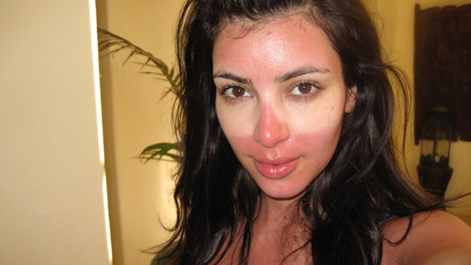 How To Hide A Sunburn With Makeup Without Causing More Damage Or Looking Like A Clown