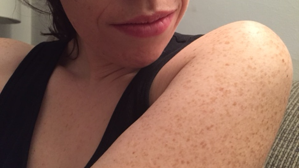 Those Bumps On Your Upper Arms Are Called Keratosis Pilaris And