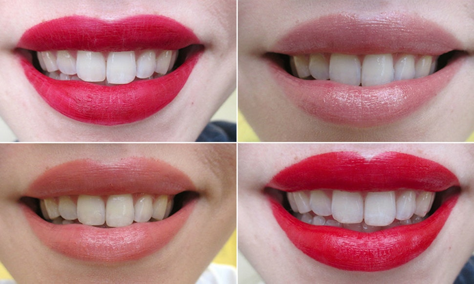 how to make teeth look whiter instantly