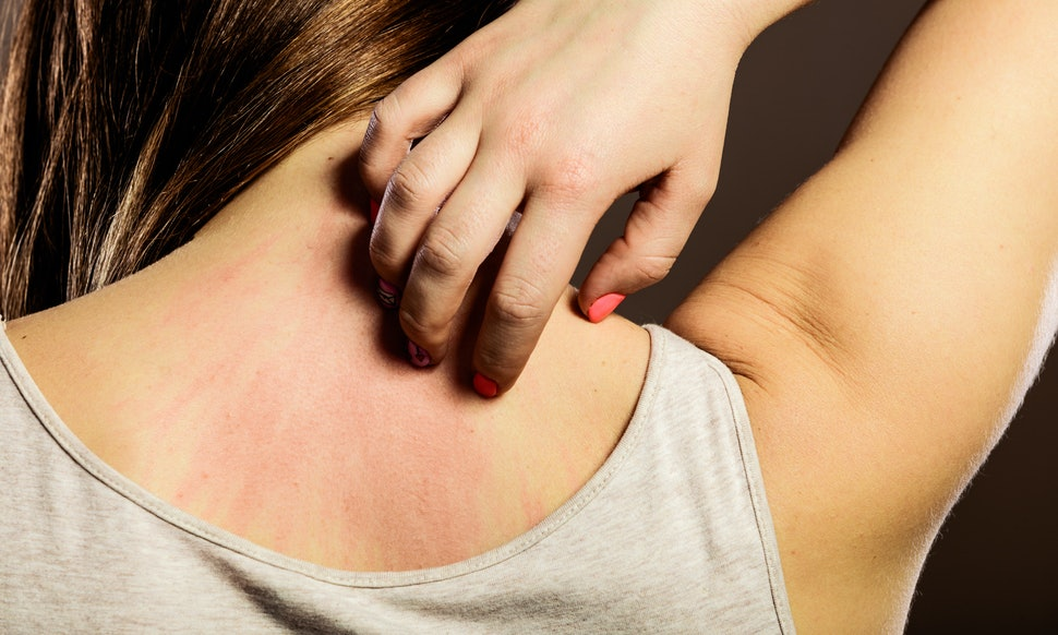 Research Suggests Pregnant Women May Be More Susceptible To Mosquito Bites