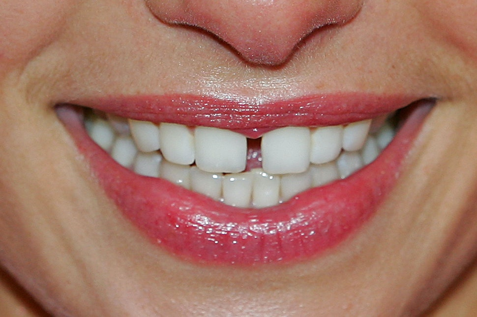 Learn How To Naturally Whiten Teeth So You Don T Have To Give Up Red